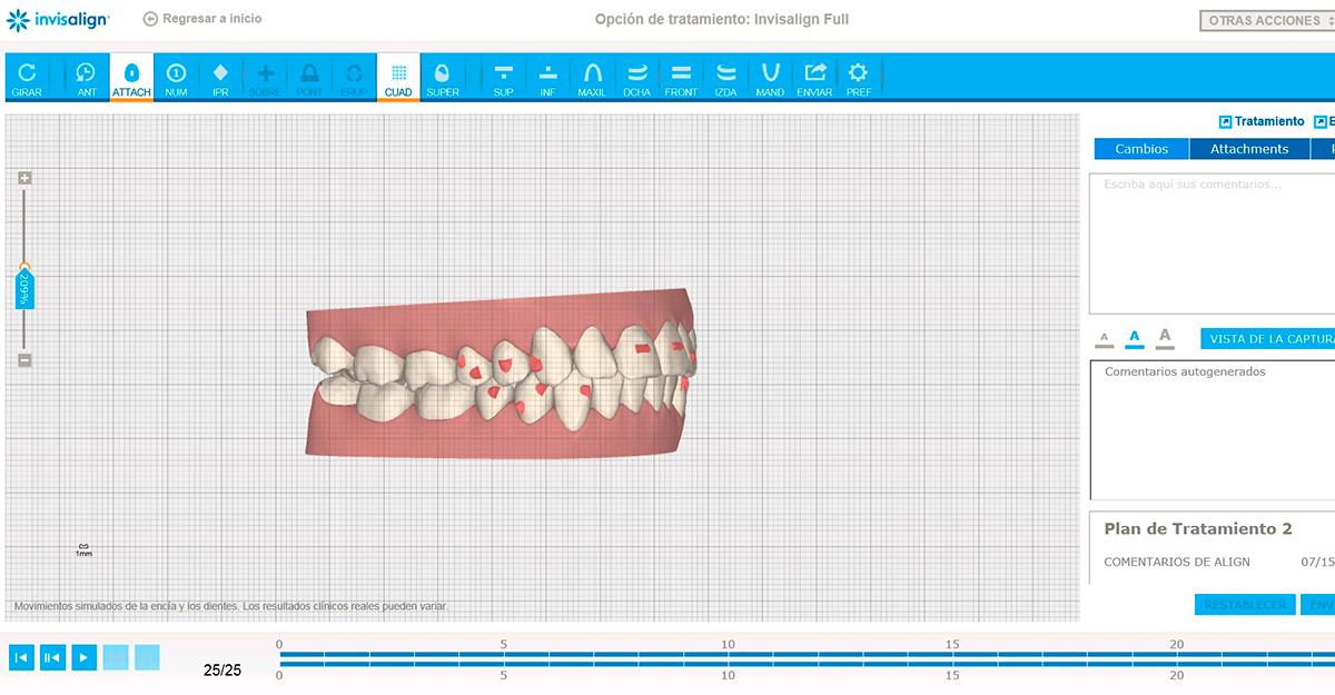 ClinCheck-Invisalign---MiBO-Clinica-Dental-Almeria