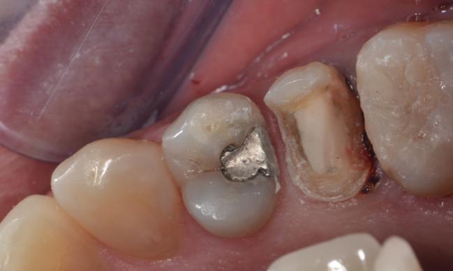 Incrustaciones Dentales - MiBO Almeria