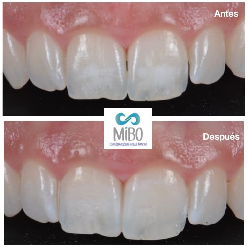 Obturación o Empaste Dental - MiBO Almeria