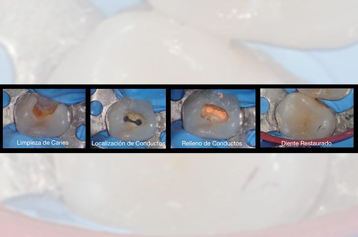 Proceso Endodoncia MiBO Almeria