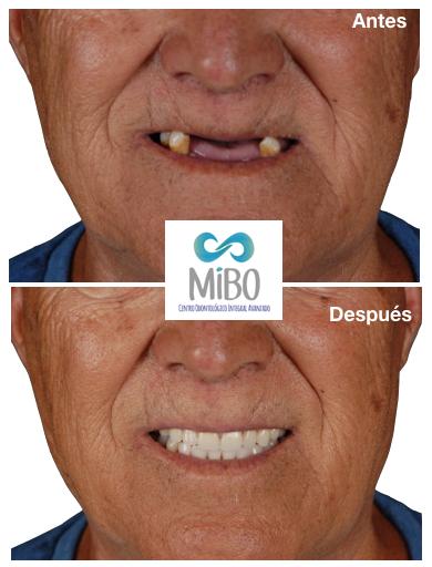 Protesis Removibles - MiBO Almeria