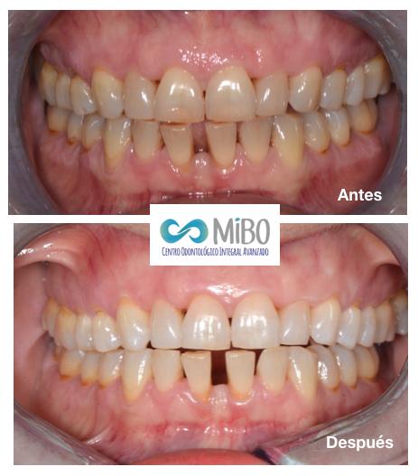 Blanqueamiento Dental Externo - MiBO Almeria